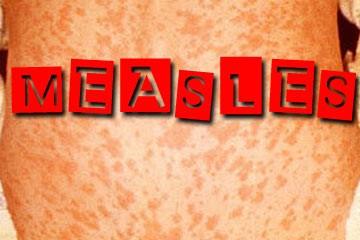 measles-outbreak