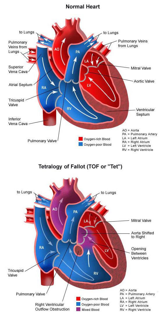 Tetralogy of Fallot Vertical