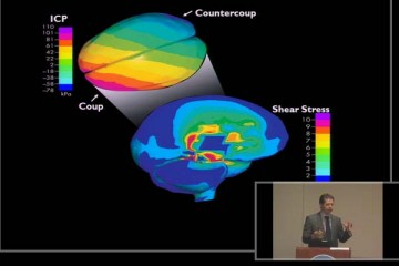 video-psychology-behind-concussions