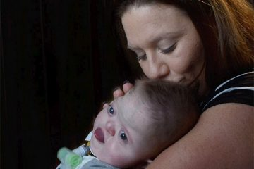 Karen Stapleton nuzzles her 1-year-old son Noah in their home. Noah was born with multiple disorders, including one that caused his skull to fuse prematurely. (Photo: Bill Alkofer, OC Register Staff Photographer)