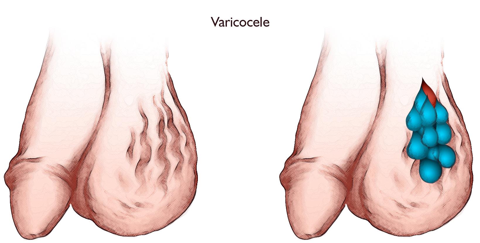 Varicocele rendering