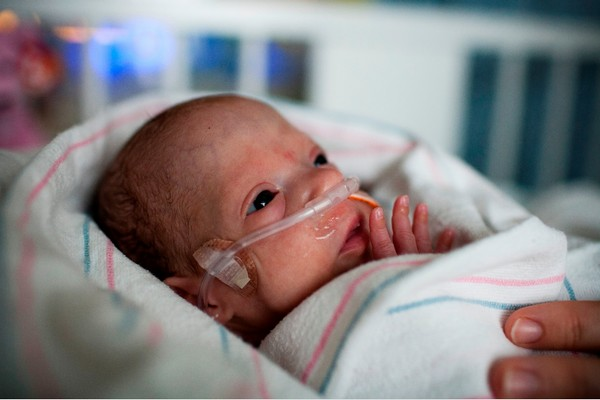 Baby in the surgical NICU