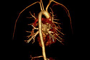 3D-cardiac-MRI