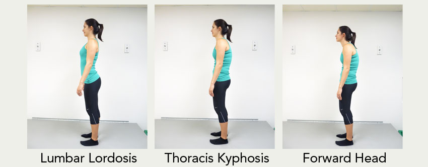 Bad-Standing-Posture