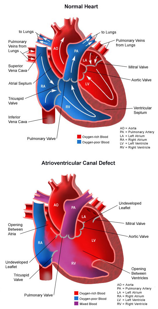 Atrioventricular Canal Defect Vertical