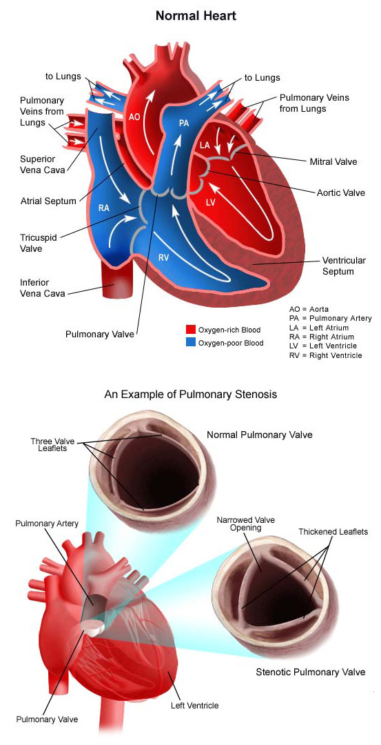 pulmonary stenosis adults Congenital
