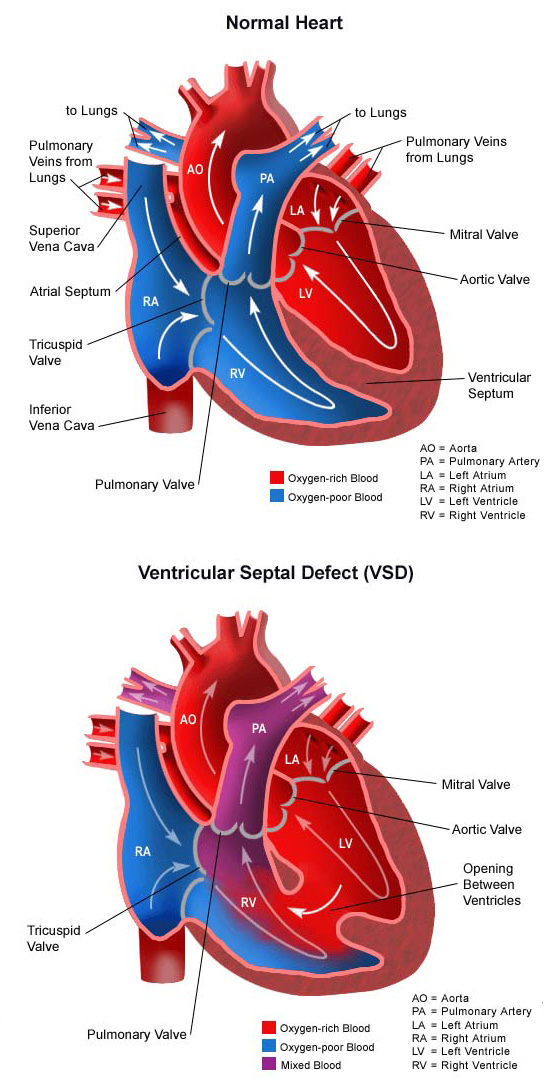 Ventricular Septal Defect Vertical