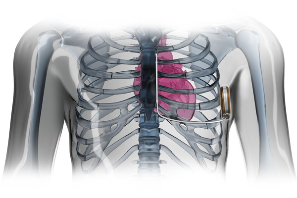 Rendering of subcutaneous ICD