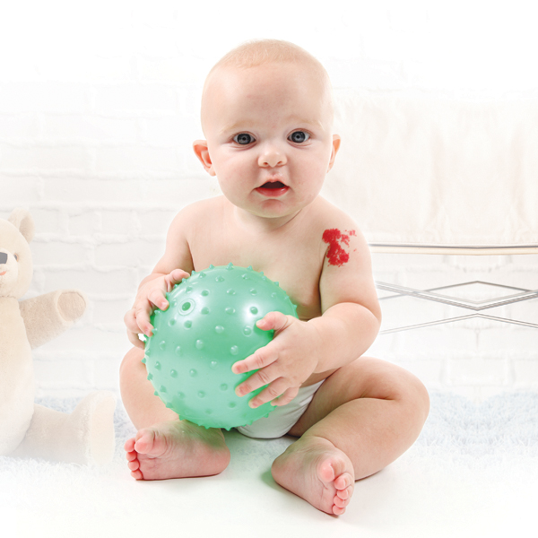 Baby with birth mark holding ball