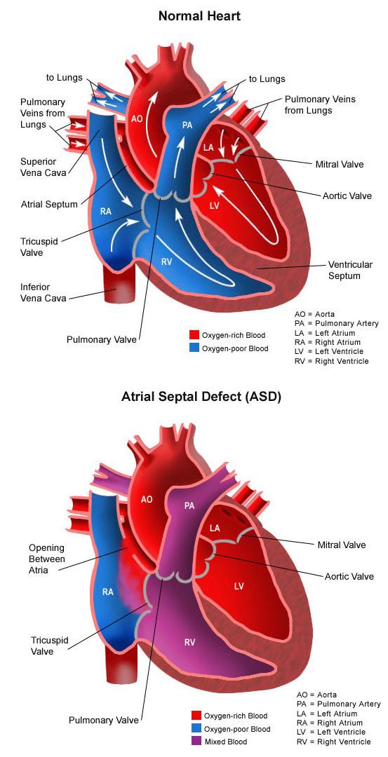 atrial septal defect choc childrens