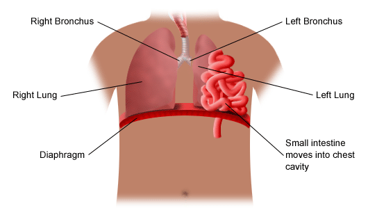 diaphragmatic-hernia