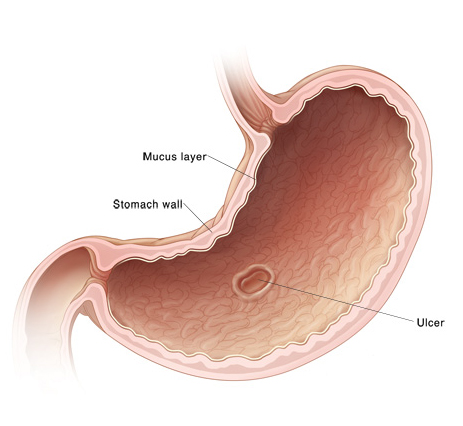 Stomach and Duodenal Ulcers
