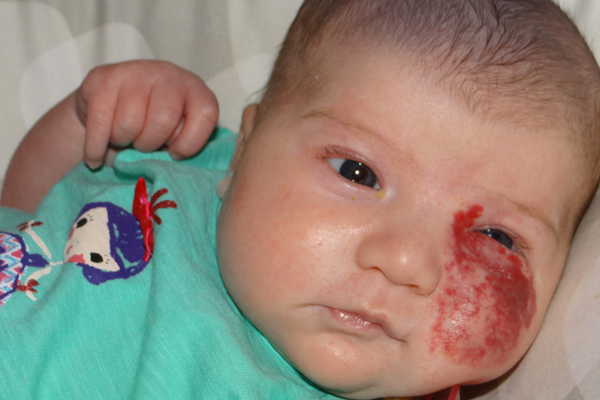 Patient Casey with hemangioma on his cheek