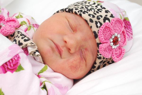 baby with hemangioma