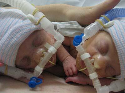Two preemie babies