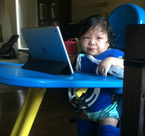 toddler with a devastating rare condition