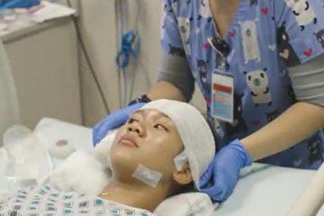 Journey video long-term video electroencephalogram